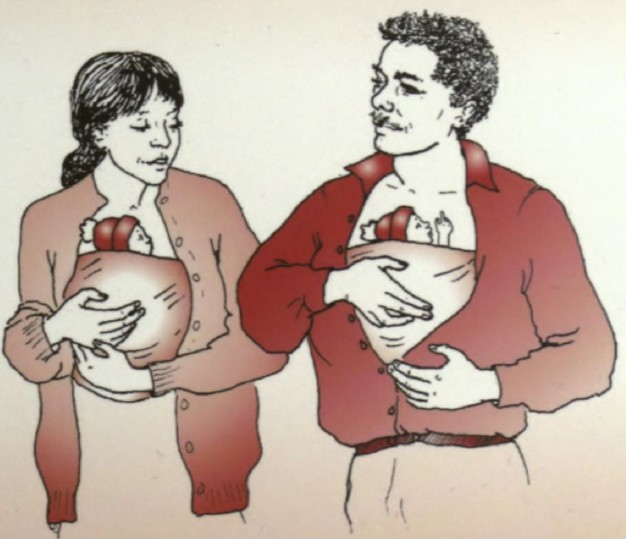Kangaroo Mother Care: 20 years later, and beyond – Trieste